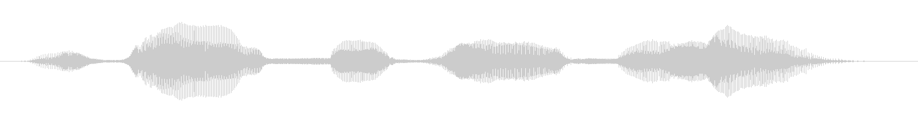 """6 year old girl """"2022""""-03's unreproduced waveform"""