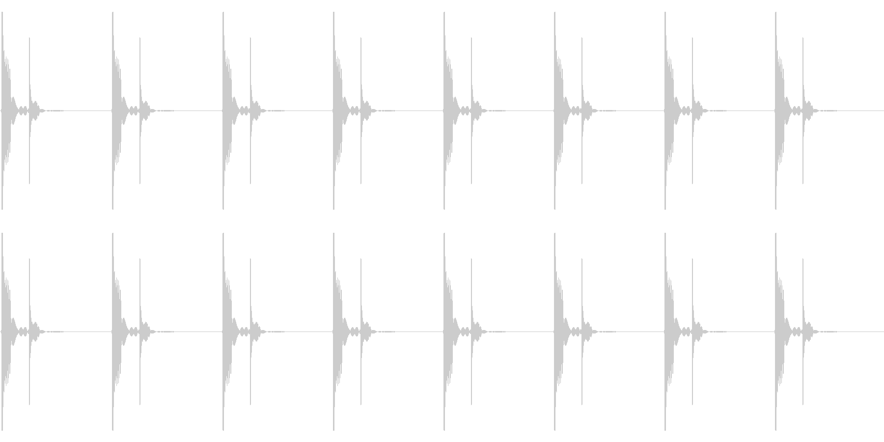 心臓の鼓動_上昇_心拍数48の未再生の波形