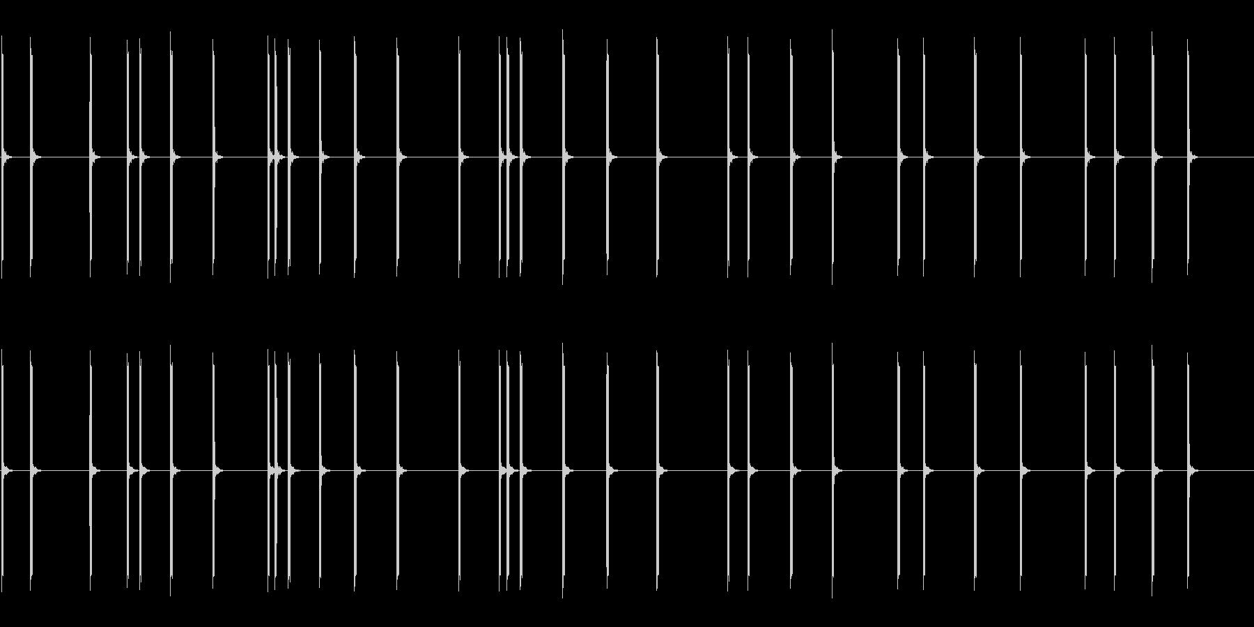 「心拍異常」ECGモニター(心電図)の未再生の波形