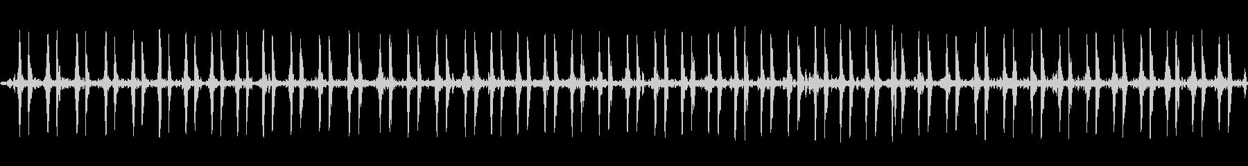【特殊音】心臓の音の未再生の波形